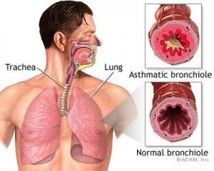 Penyakit Asma Bronkial