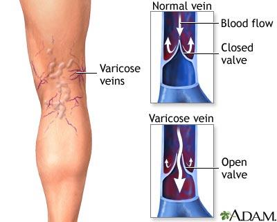 Pertubuhan janin dikhawatirkan bisa terganggu gara-gara varises atau pelebaran pembuluh darah
