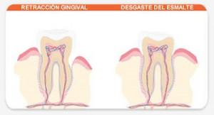Tips Untuk gigi Sensitif