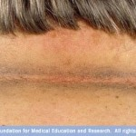 Tips Untuk Memutihkan Leher Gelap