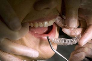 Cara Merawat Kesehatan Gigi Bagi Pengguna Behel