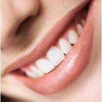 Tips Mengatasi Plak Gigi