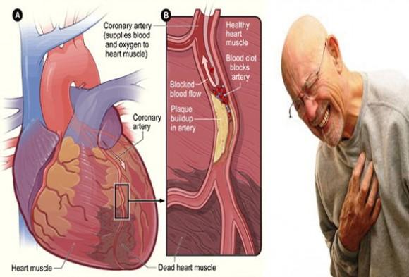 Cara Alami Mengobati Penyakit Jantung Koroner