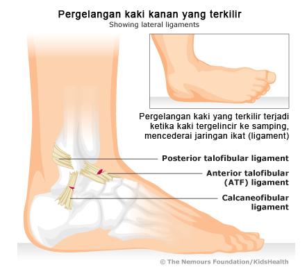 Ramuan Obat tradisional untuk kaki terkilir