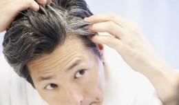 Tips Mengatasi Rambut Beruban di Usia Muda