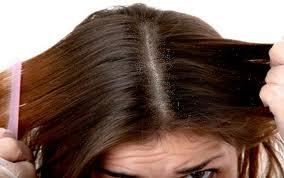 Tips untuk Membasmi Kutu Rambut dengan Cepat dan Mudah