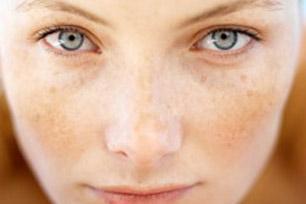 Cara Mudah Mencegah Flek Hitam Di Wajah