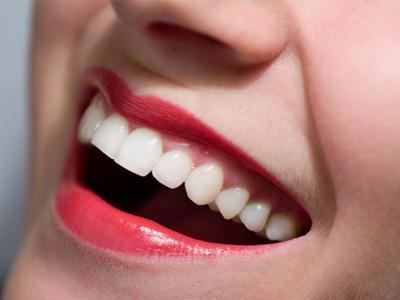 Cara Mudah Menjaga Gigi Tetap Putih
