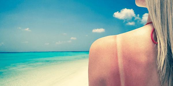 Cara Memutihkan Kulit Terbakar Akibat Sinar Matahari