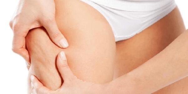 Cara Mengatasi Stretch Mark