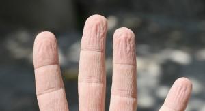 Penyebab dan Cara Menghindari Retak-Retak di Jari Tangan